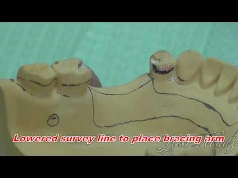 2- Surveying of Casts ( Ney Dental Surveyor )