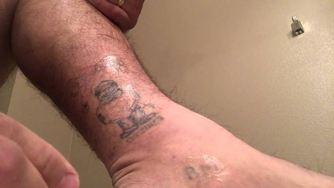 TCA 50% Tattoo Removal - 1st Ankle Application - YouTube