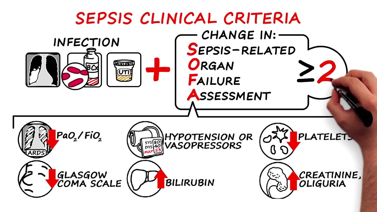 Consensus Definitions for Sepsis and Septic Shock YouTube : maxresdefault from www.youtube.com size 1920 x 1080 jpeg 166kB