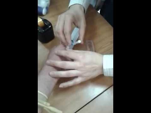 طريقة تركيب قثطرة وريدية + سحب دم