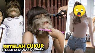 Masih Ingat Gadis Viral Yang Wajahnya Dipenuhi Bulu Begini Penampilannya Sekarang Setelah Dewasa