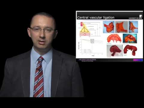 State of the Art Masterclass Lecture: Complete Mesocolic Excision for Colon Cancer