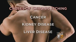 New, Surprising Way To Treat Chronic Itching
