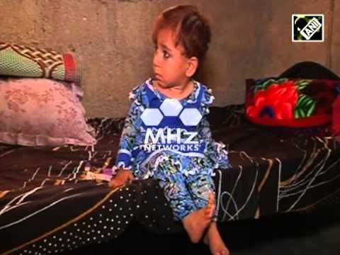 Polio cases reach 257 in Pakistan (SAN - 21 Nov, 2014)