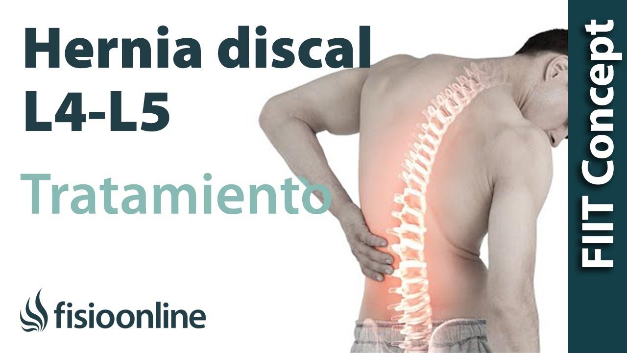 Tratamiento De Hernia Discal L4 Y L5 Derecha O Cuarta Y Quinta