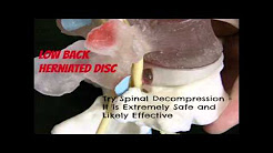 Untreated Sciatica Leads to More Severe Problems- South Austin Chiropractor