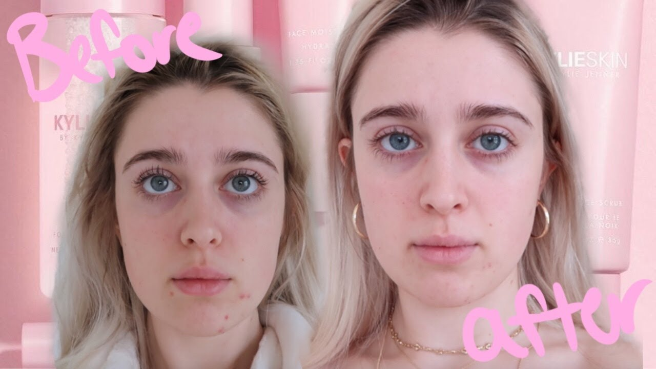 I Tried Kylie Skin For 30 Days My Results Detailed Review