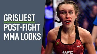 Most Brutal Post-fight Looks In MMA