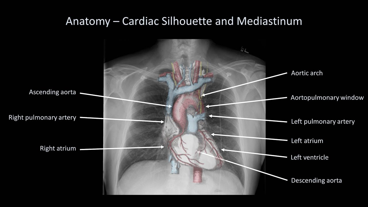How To Interpret A Chest X Ray Lesson 2 A Systematic Method And