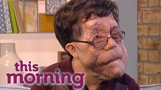 Adam Pearson on Disability Hate Crimes | This Morning