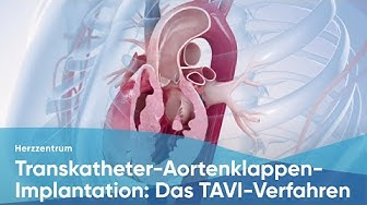 Transkatheter-Aortenklappen-Implantation: Das TAVI-Verfahren