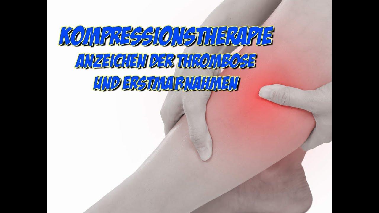 Symptome einer thrombose