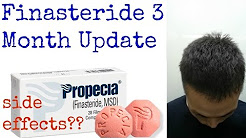 3 Month Update on Finasteride/Propecia - Preventing Baldness