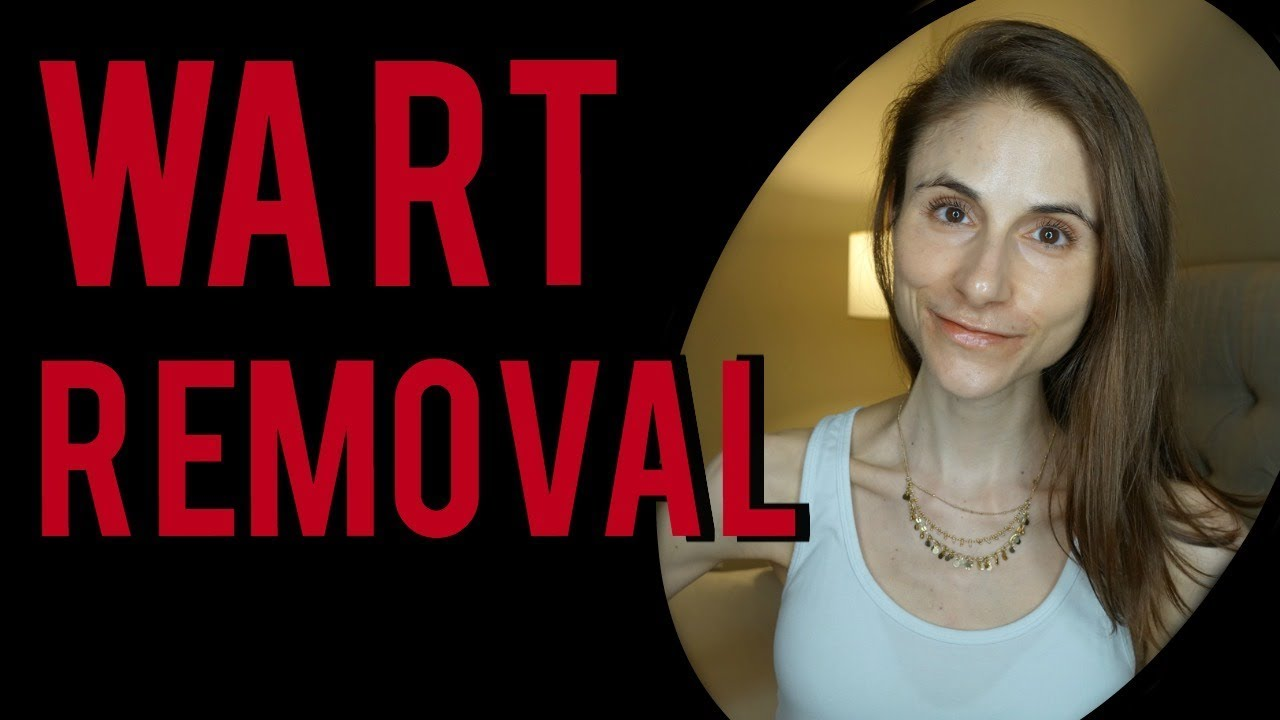 WART REMOVAL: Q&A WITH DERMATOLOGIST DR DRAY