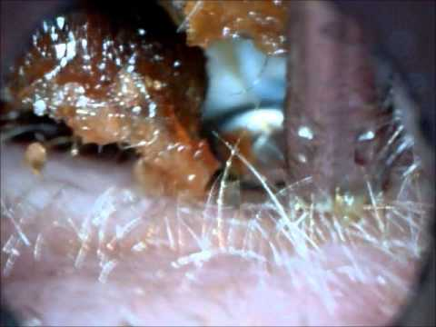 Ear wax removal - Hopi Candle gone wrong - YouTube
