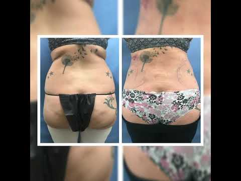 Must See Liposuction Before and After Results Dr. Thomas Barnes Newport Beach, OC, Amazing Results!