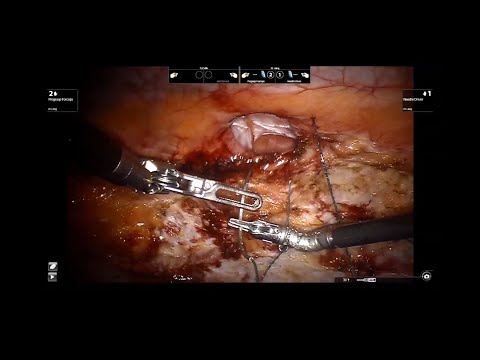 Primary Fascial Closure During Robotic Incisional Hernia Repair
