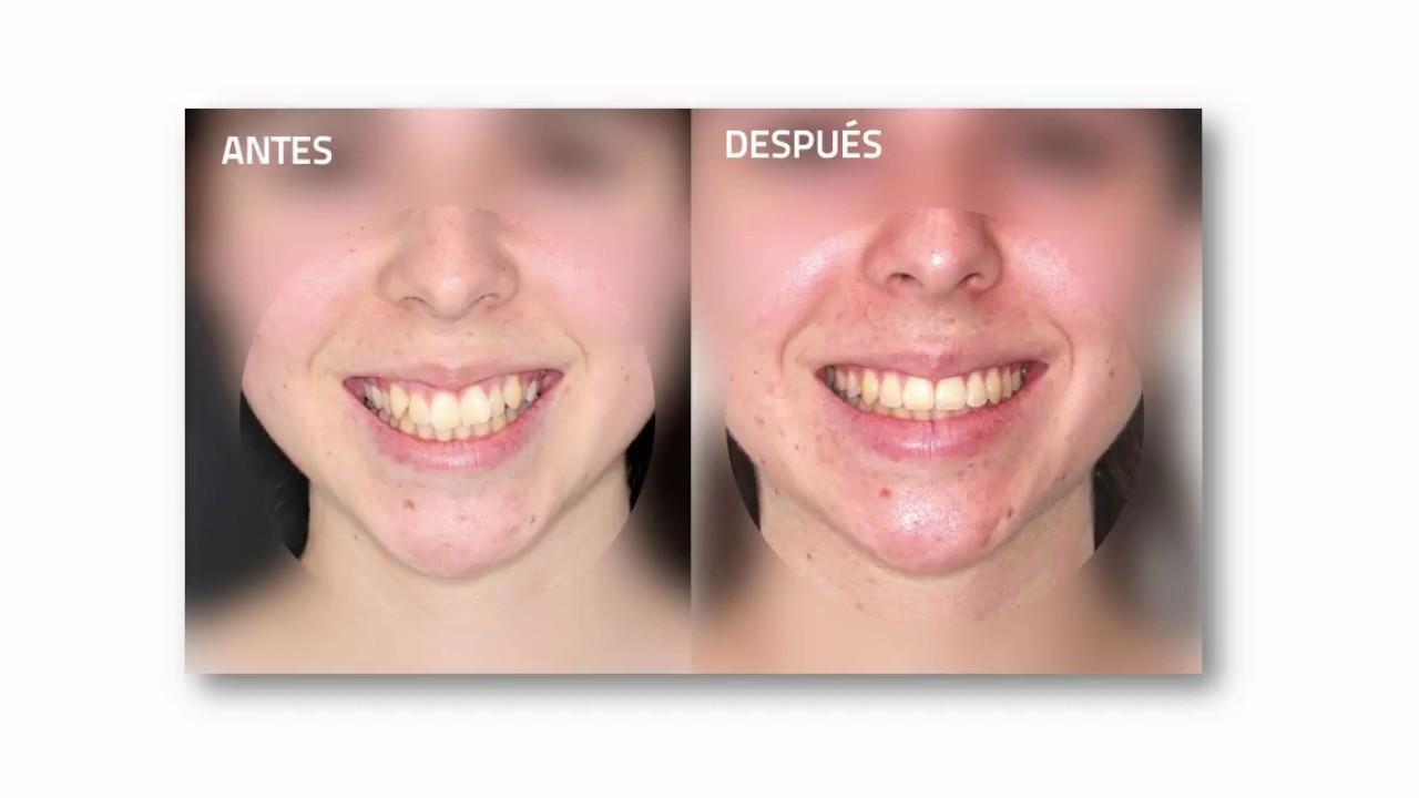Tratamiento de Ortodoncia con Extracciones: antes y después