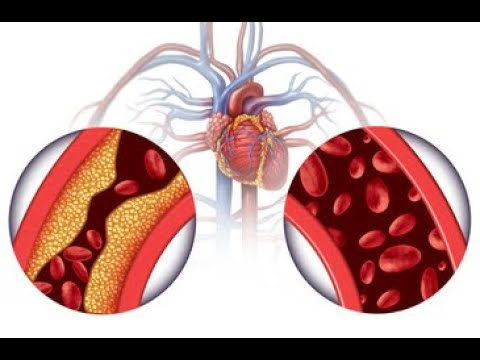 High Blood Pressure and Your Kidneys