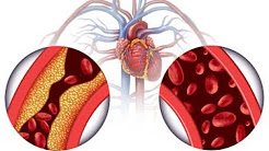 hqdefault - Can High Blood Pressure Cause Kidney Damage
