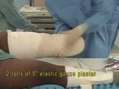 Transtibial Amputation Extended Flap and Bone Bridging - Bandaging