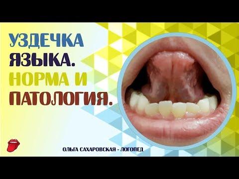 Как подрезают уздечку языка у грудничка видео