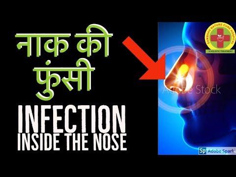 Naak Ki Funsi Ke Gharelu Upay | Pimple Inside Nose Remedy (नाक की फुंसी Acupressure)