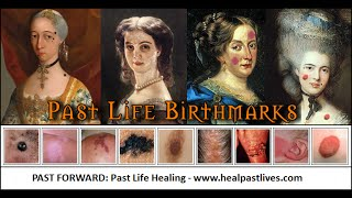 Birthmarks - Birth Marks Caused By Past Lives