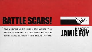 Jamie Foy's Battle Scars | This Monday...