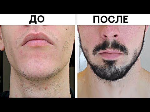 Рост бороды ускорить в домашних условиях