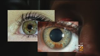 New Study Looks At Possible Relationship Between Eye Freckles And Melanoma