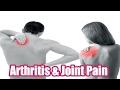 Home Remedies for Arthritis How to Treat Arthritis Naturally
