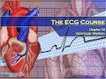 The ECG Course - Ventricular Rhythms