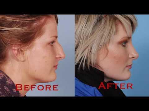 Get Rid Of A Nose Hump\u2015\u220e affirmations - YouTube