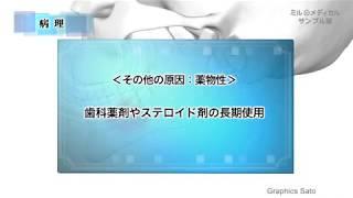 顎骨骨髄炎/ミルメディカル 家庭の医学 動画版