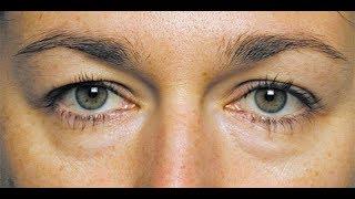 видео Мешки под глазами - причины и методы избавления
