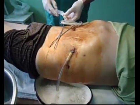 панкреонекроз,  лечение в Дергачевской ЦРБ