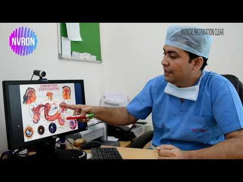 Male infertility (কোন স্থিরতা) in Bengali | Patient Education I MIC