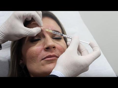 Toxina Botulínica e PREENCHIMENTO (Lábios - Bigode Chinês - Ruga Glabelar)