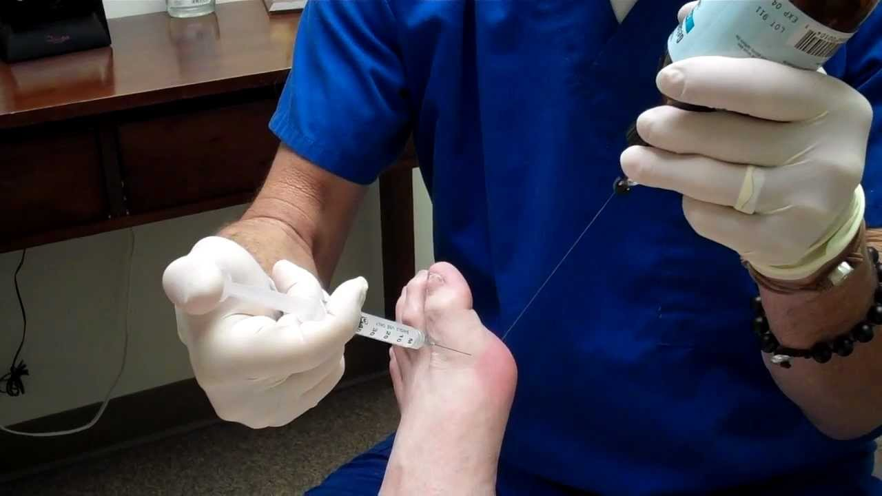 steroid shot in foot pain