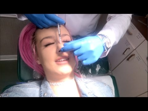 GETTING STEROID INJECTIONS IN MY NOSE