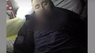 Красногорский стрелок покончил с собой: тело на своей даче нашел хозяин