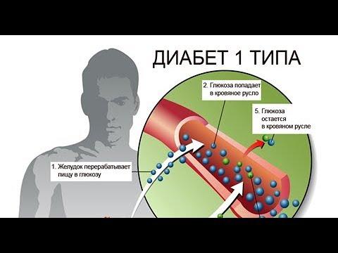 Сахарный ДИАБЕТ 1-го типа - это АУТОИММУННОЕ заболевание / Фролов Ю.А.