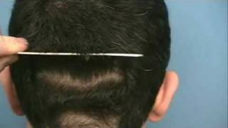 Doctor Wong Hair Transplant - 3150 Grafts - 1 Session