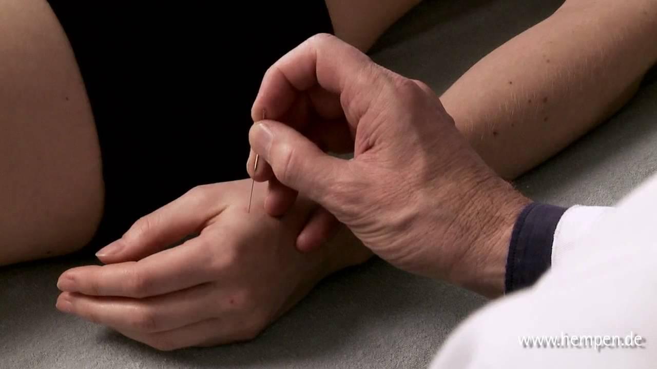 Abnehmen Mit Akupunktur Der Schlüssel Liegt Im Ohr