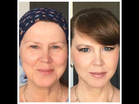 Жировая грыжа под глазами: лечение без операции народными