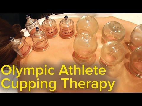 hqdefault - Cupping Therapy Back Pain