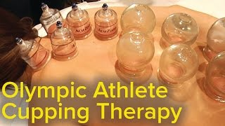 Chinese Cupping Therapy - Relaxing, Healing and Pain Relieving | ASMR Triggers