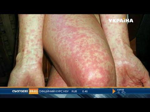 Дві з половиною тисячі людей захворіли на кір в Україні