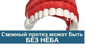 Съемные зубные протезы: съемный зубной протез sandwich (сендвич)(Съемный зубной протез с опорой на собственные зубы сендвич - одна из новейших разработок зарубежных ортопе..., 2015-10-07T22:14:27.000Z)